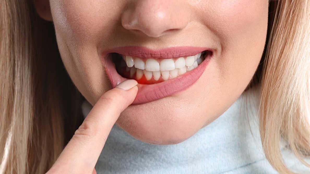 điều trị nha chu assure dental