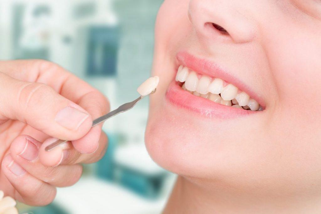 làm răng thẩm mỹ