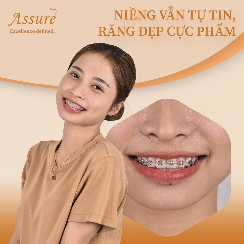 niềng răng thẩm mỹ assure dental