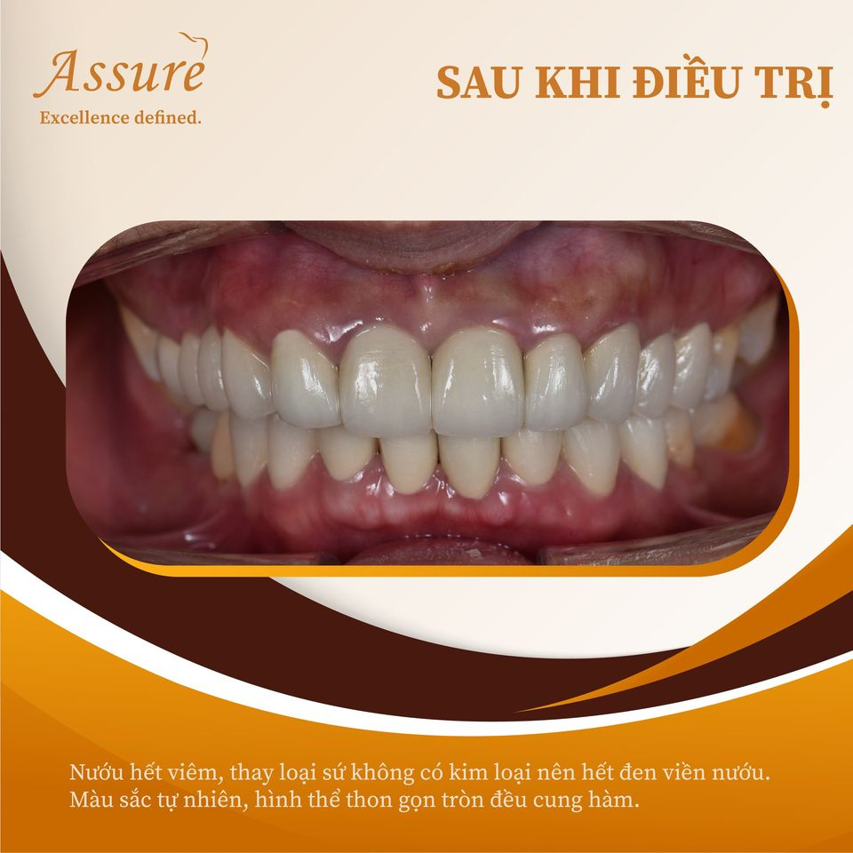 sau khi điều trị răng sứ kim loại