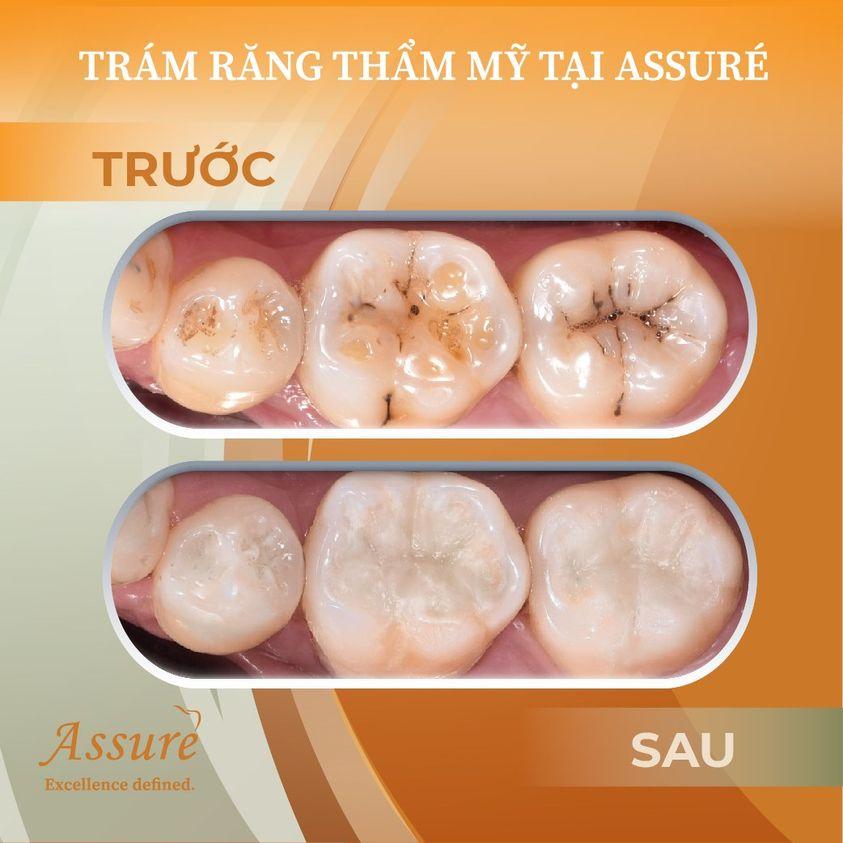 trám răng thẩm mỹ nha khoa assure dental
